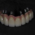 dentallabor6