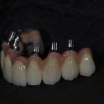 dentallabor7